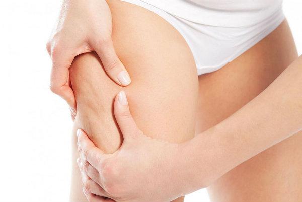 Vùng đùi thừa mỡ khiến bạn trở nên thừa cân, khó vận động